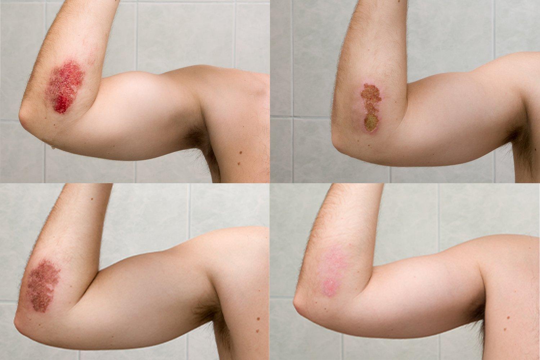 wound-process