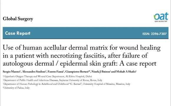 Use of human acellular dermal matrix for wound healing in a patient with necrotizing fasciitis