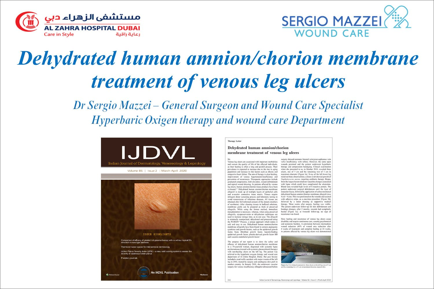 Dehydrated human amnion chorion membrane treatment of venous leg ulcers