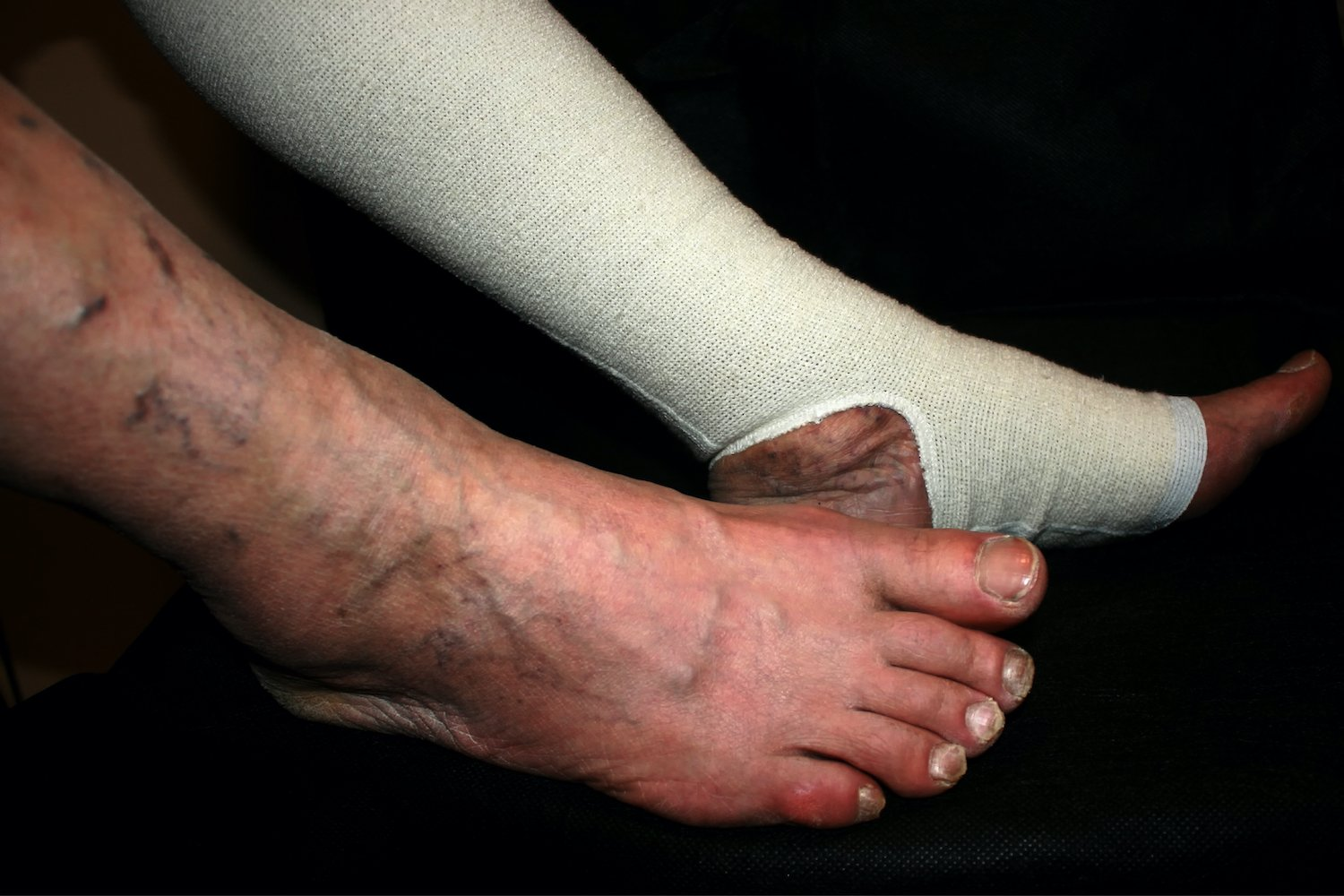 Bandage-the-Leg-Ulcers