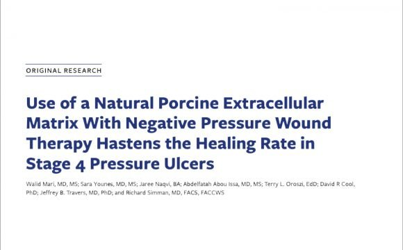 Negative pressure and natural porcine extracellular matrix in stage 4 pressure injuries