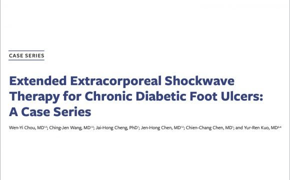 The use of Extracorporeal Shockwave Therapy for Chronic Diabetic Foot Ulcers