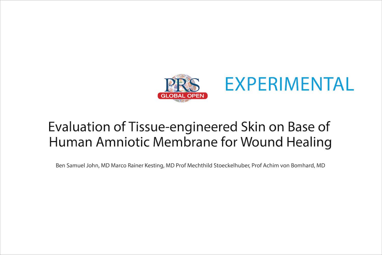 Human Amniotic Membrane and Wound Healing
