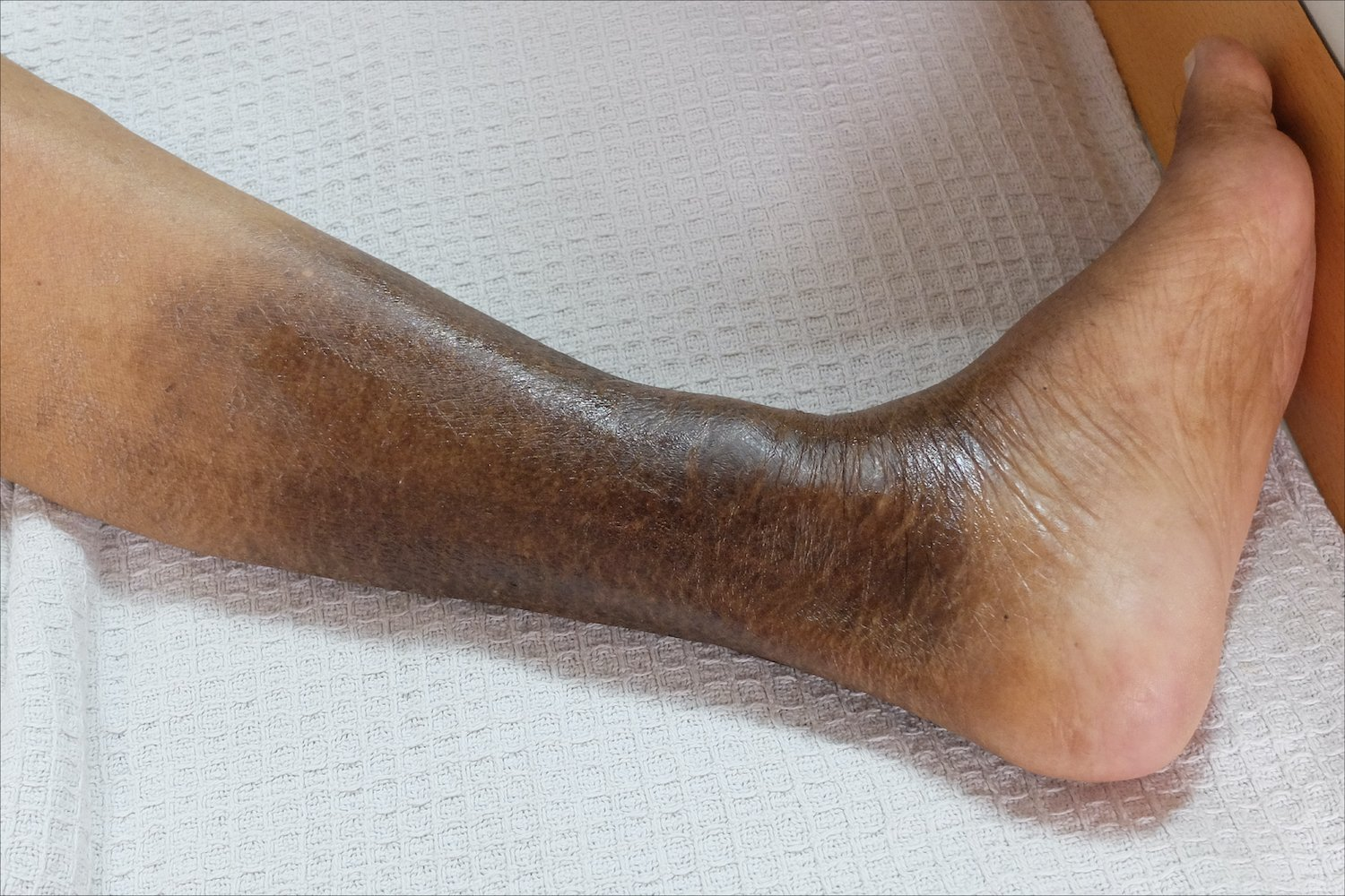 Complication of Venous Ulcers
